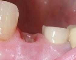 перегородка после удаления зуба фото