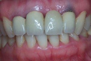 доксициклин меняет цвет зубов