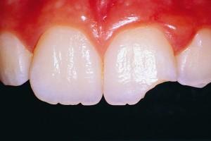 Если болит зуб но кариеса нет замена термостата на хонде цивик 2001 d14 своими руками