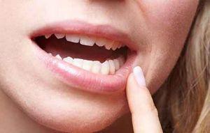Гранулема зуба : лечение в клинике и народными средствами 86