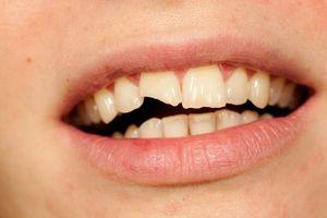 337Как вырвать сломанный зуб в домашних условиях